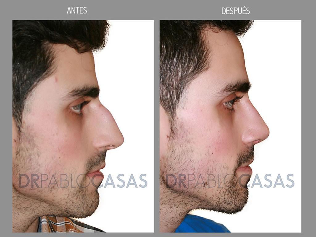 Rinoplastia en asturias cirug a de nariz dr pablo casas for Extensiones antes y despues